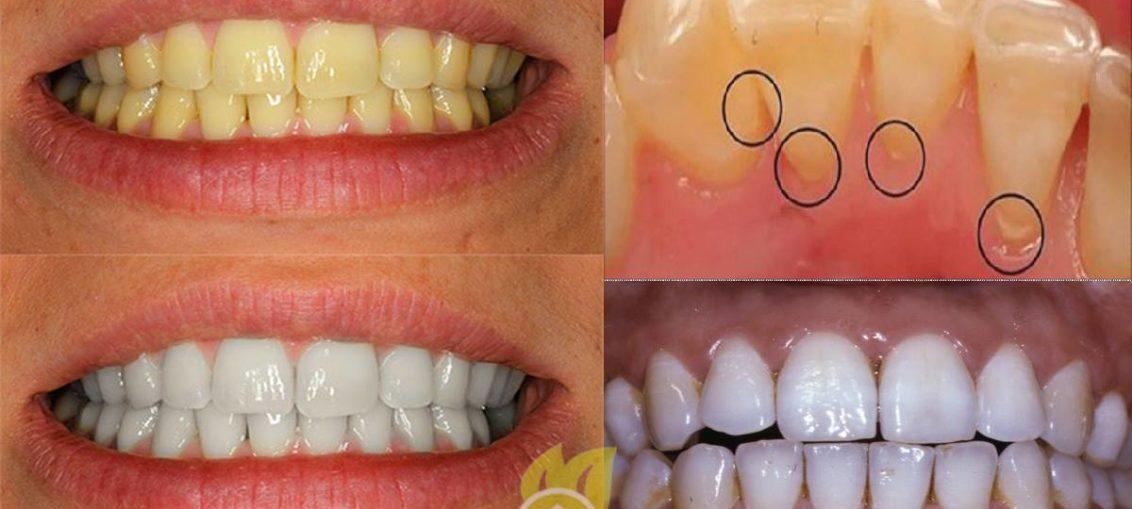 Consejos para cuidar tus dientes mucho mejor