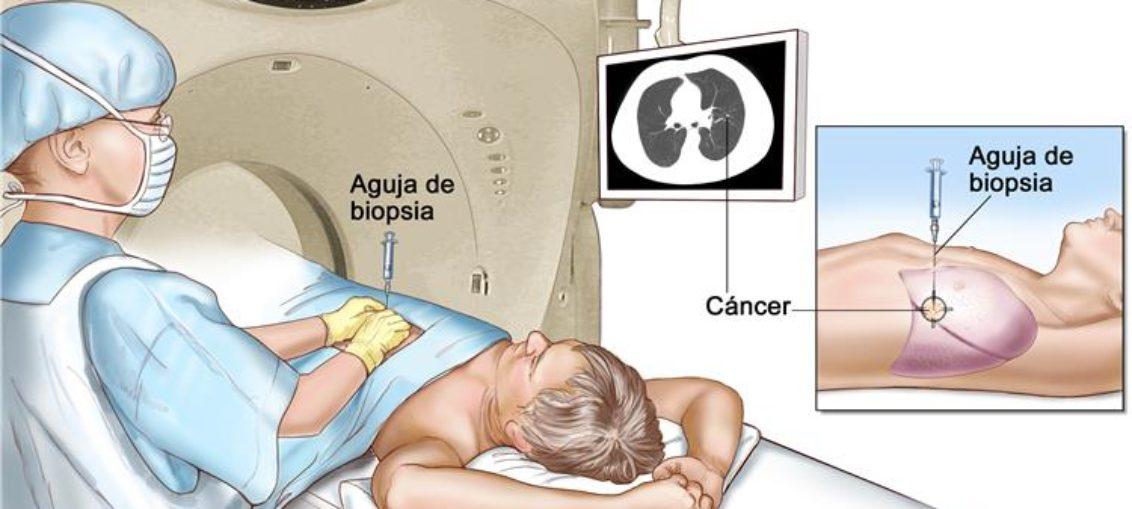 Estudios genómicos combinados de biopsia sobre cáncer