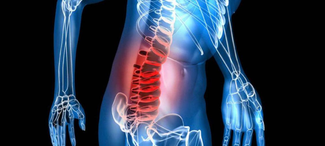 Plataforma computacional mejora tratamiento contra mieloma