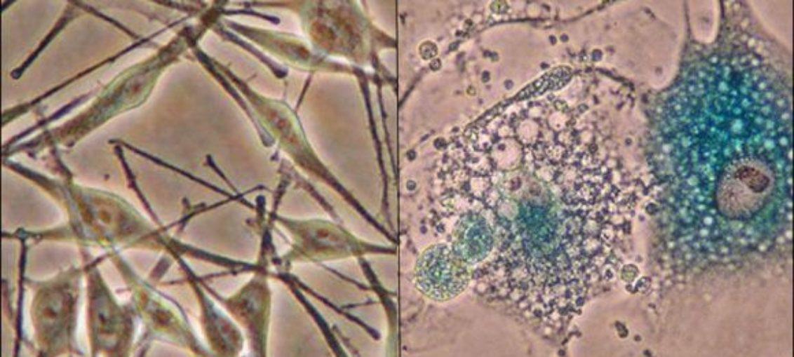 Científicos rejuvenecen células humanas en laboratorio