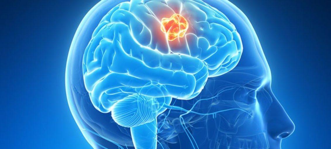 Sin confirmar nexo electromagnetismo-tumor cerebral