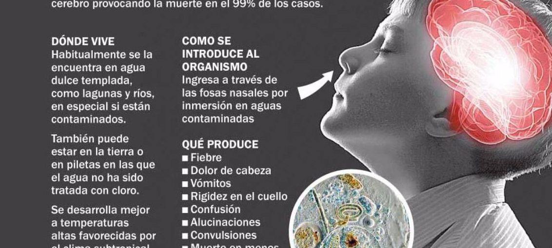 Qué es la ameba come cerebros y cómo evitar el contagio