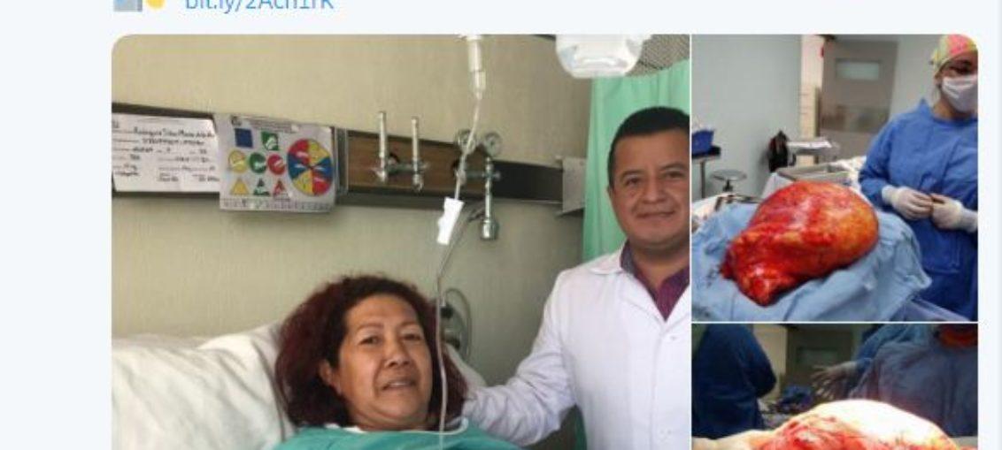 Extraen tumor de 17 kilos del abdomen de una mujer