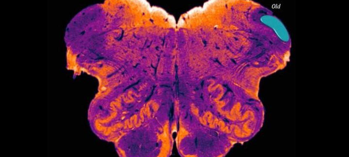 Neurocientífico descubre nueva región del cerebro humano